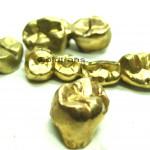 Zahngold ankauf Hamburg, gute Preise für Ihr Zahngold